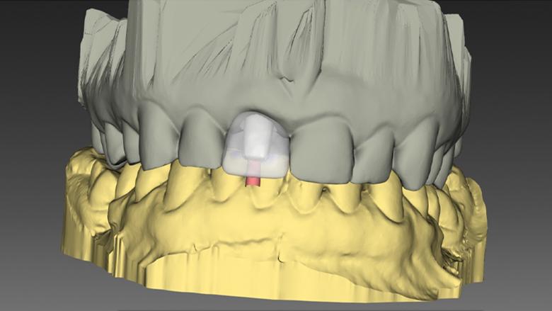 Využití současných technologií a digitálních řešení v okamžité jednodobé implantaci