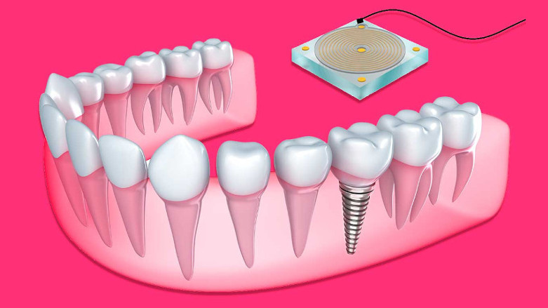 New sensor monitors bone growth around dental implants