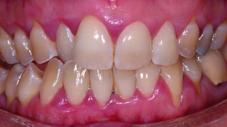 Intérêt des restaurations adhésives céramiques en dentisterie non invasive