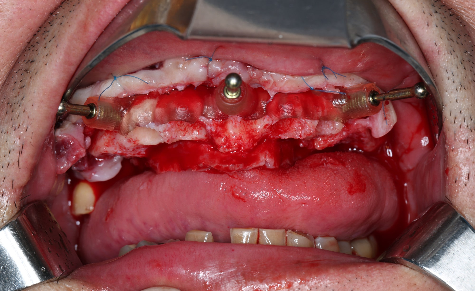 Compromised maxillary dentition treated with Straumann Pro Arch and a digital workflow