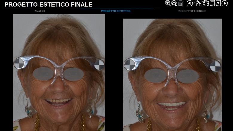 Sviluppo di un progetto interamente digitale dedicato alla protesi totale