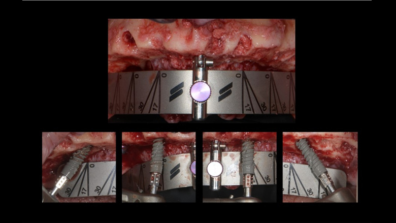 How guided implant surgery facilitates communication and the treatment decision process