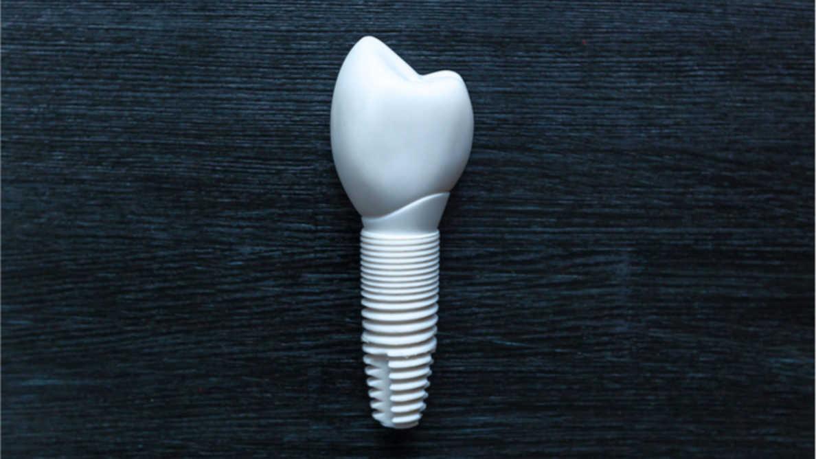 Uusi tuotantoprosessi voi tehdä keraamisista hammasimplanteista kestävämpiä