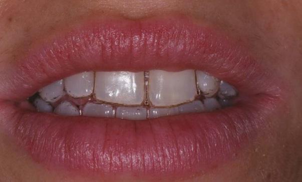 Protocolli di igiene orale per la bellezza e la salute del sorriso nel paziente ortodontico