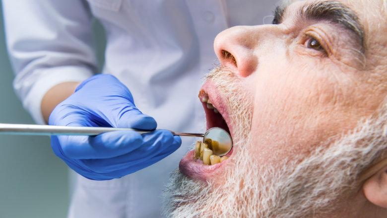 Schlechte Mundhygiene beschleunigt schwere COVID-19 Verläufe