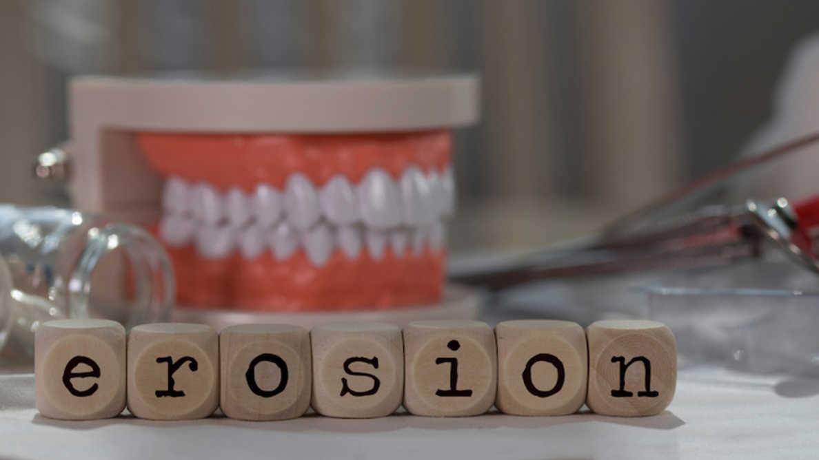 Tutkimus tanskalaisten hammaslääkäreiden kliinisistä taidoista liittyen hammaseroosioihin