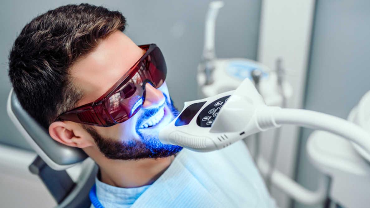 Laittomat hampaiden valkaisut lisääntyneet