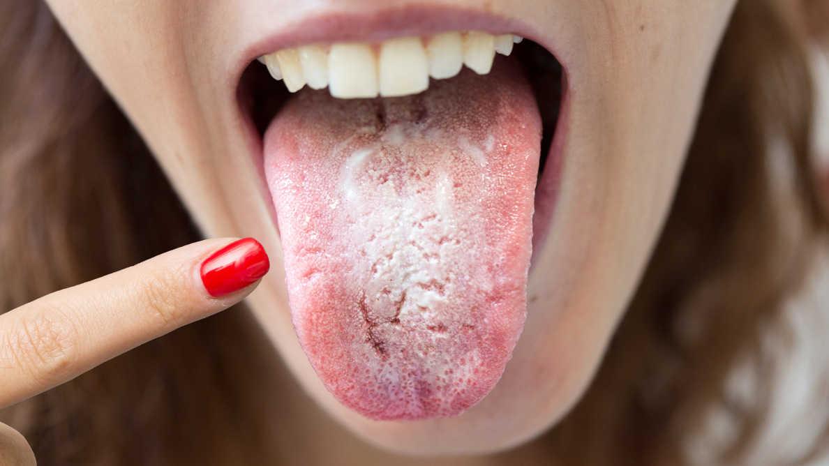 """""""COVID jezik"""" – stomatolozi treba da budu na oprezu u vezi sa simptomima u usnoj šupljini"""