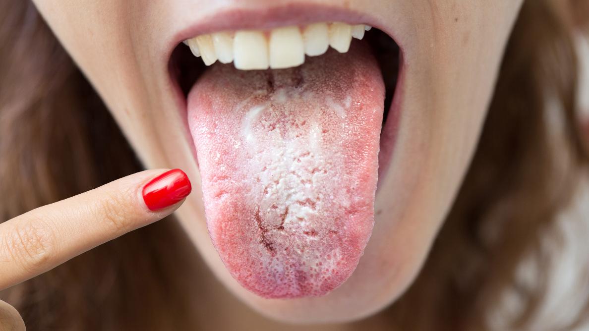 """La """"lengua COVID"""": síntomas de COVID-19 en la cavidad oral"""