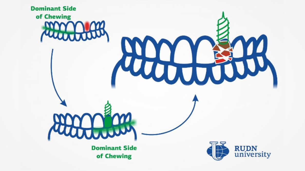 咀嚼習慣の変化がインプラントの劣化の原因と判明