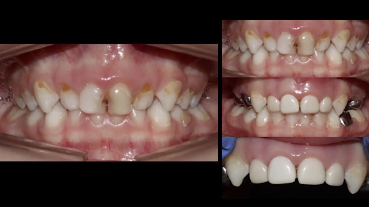 Caries severa de primera infancia en odontopediatría