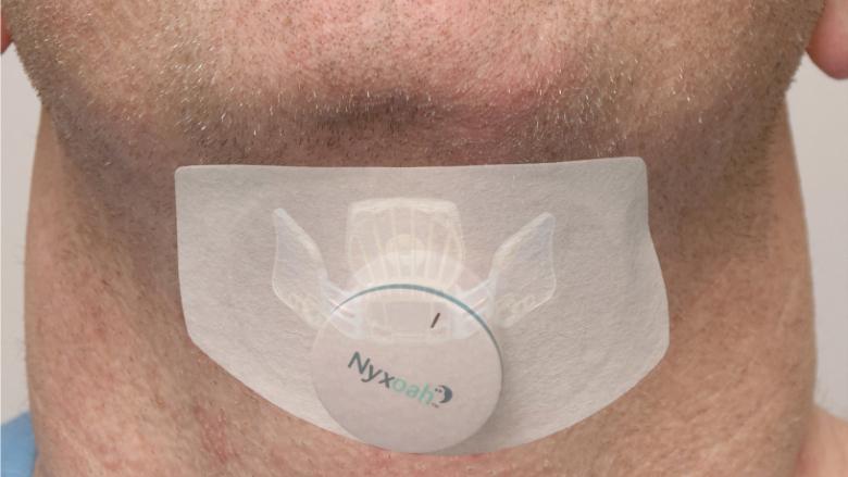 Mit Zungenschrittmacher gegen Schlafapnoe