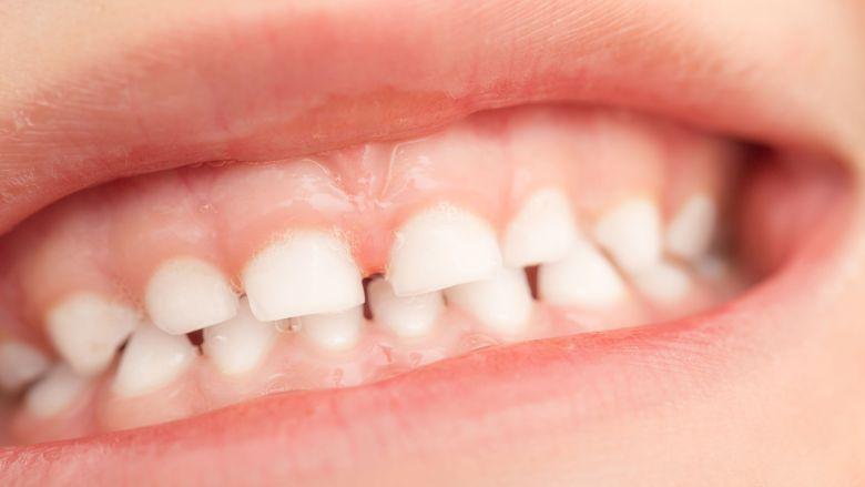 Kinderen met immuundeficiënties hebben meer kans op het ontwikkelen van parodontitis