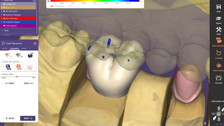 Exocad宣布推出DentalCAD 3.0 Galway