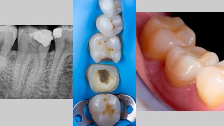 Manejo clínico de un tratamiento de conductos en el diente 4.7
