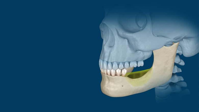 Orthognatic Surgery: Understanding the basics