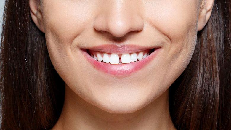 D'où vient l'expression «avoir les dents du bonheur»?