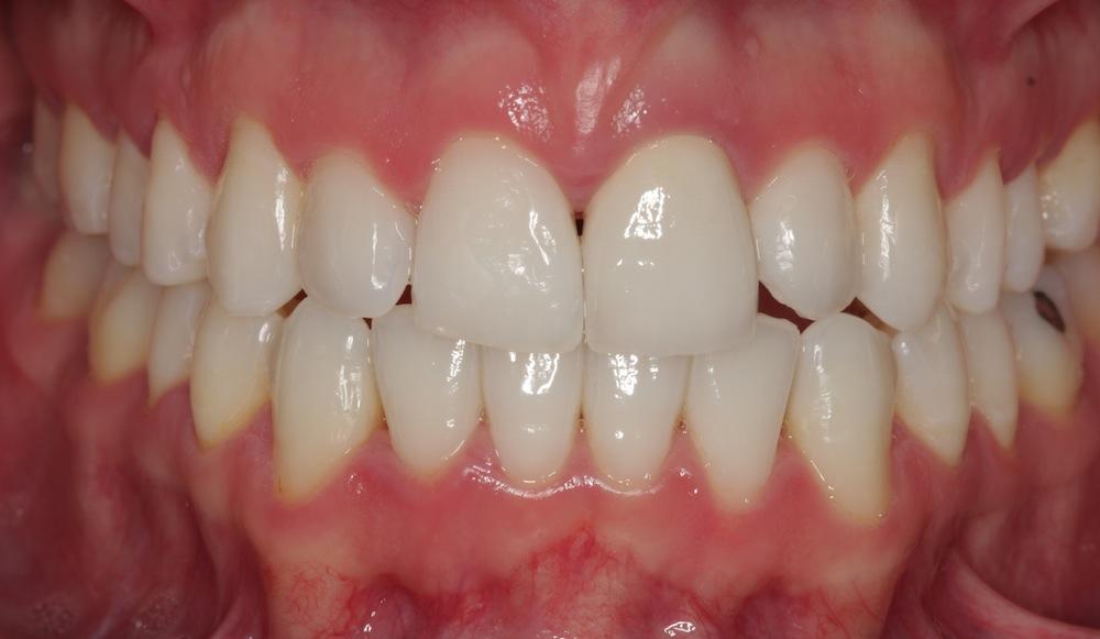 Минимально инвазивное стоматологическое лечение с использованием эрбиевого лазера