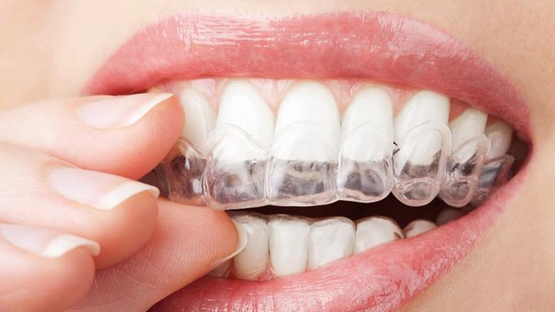 Posune COVID-19 ortodoncii dále do digitálního prostoru?