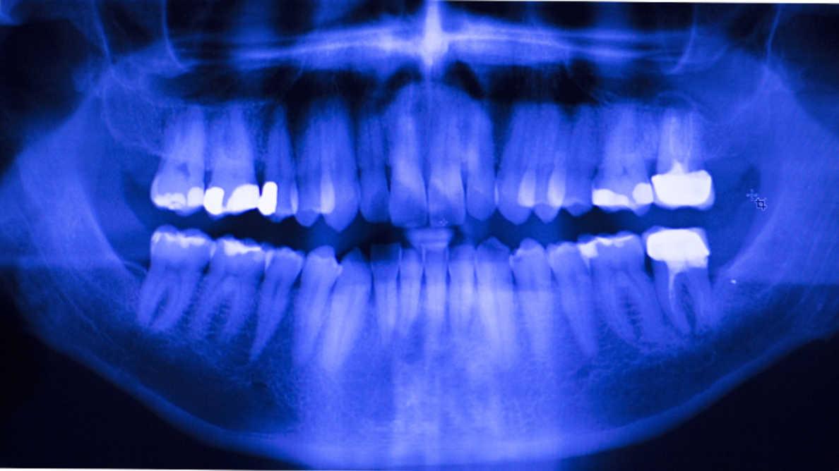 Afastando-se do amálgama: ferramenta on-line ajuda dentistas na escolha de materiais restauradores