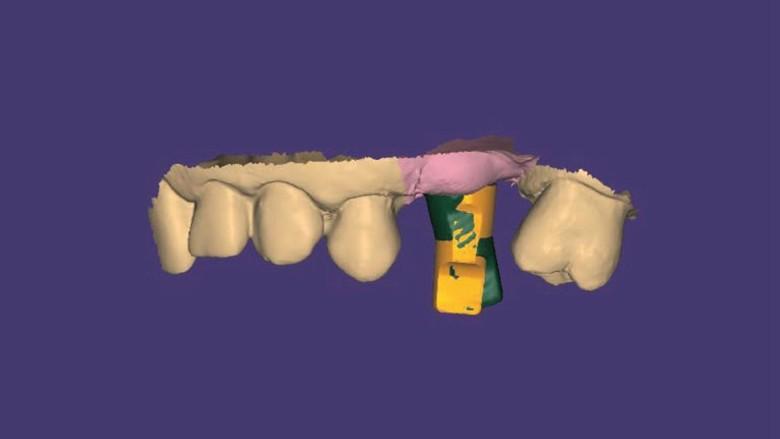 Il workflow digitale REX PiezoImplant nelle creste sottili