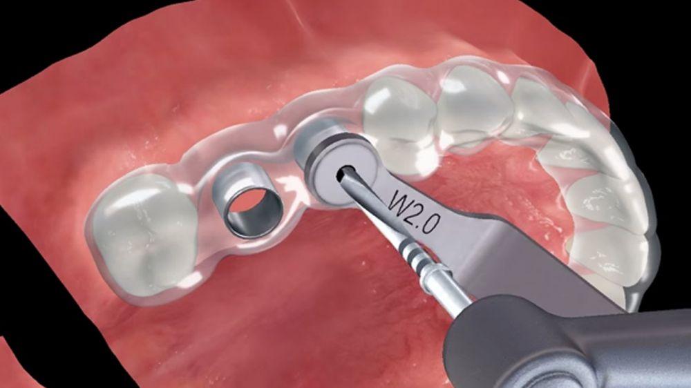 Предсказуемая установка имплантатов с хирургическим шаблоном для реабилитации всей полости рта