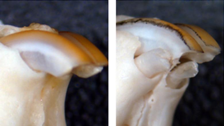 Kaybedilen Dişler Yeniden Çıkabilir mi?