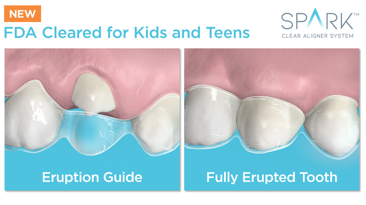 Ormco announces FDA approval to treat mixed dentition with Spark clear aligners