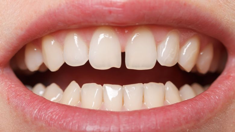 Regi liet tandspleetje al na één dag herstellen