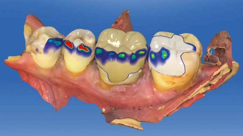 Vyfrézovat, vyleštit, nasadit! Nepřímé procedury ve stomatologickém workflow