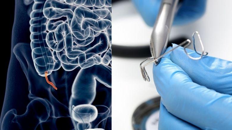 Blindedarmontsteking door orthodontische draad