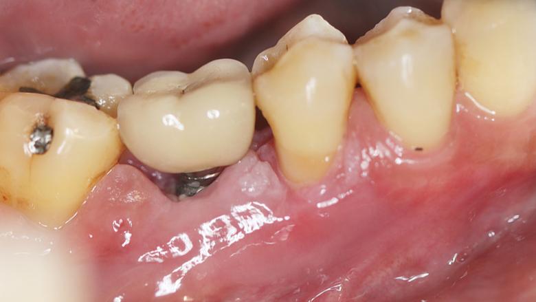 Peri-implantitis je druga najčešća komplikacija nakon terapije zubnim implantatom