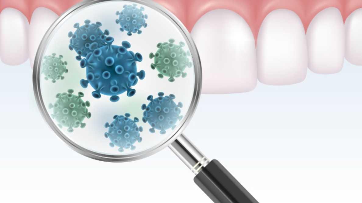 Tutkijoiden mukaan COVID-19 saattaa levitä keuhkoihin ikenistä