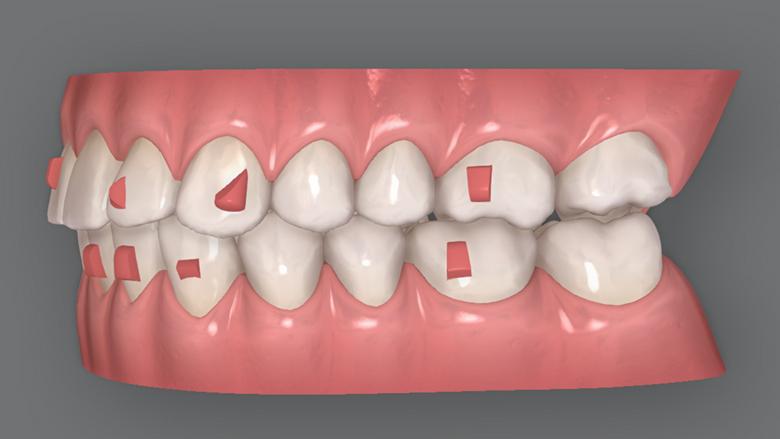 Důležitost plánování léčby a spolupráce pacienta u ortodontické techniky fóliových aparátů