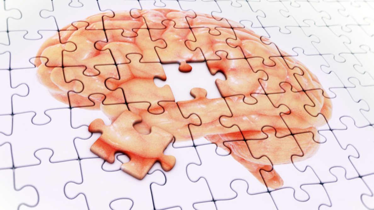 Uno studio conferma come la recessione gengivale aumenti il rischio di sviluppare l'Alzheimer