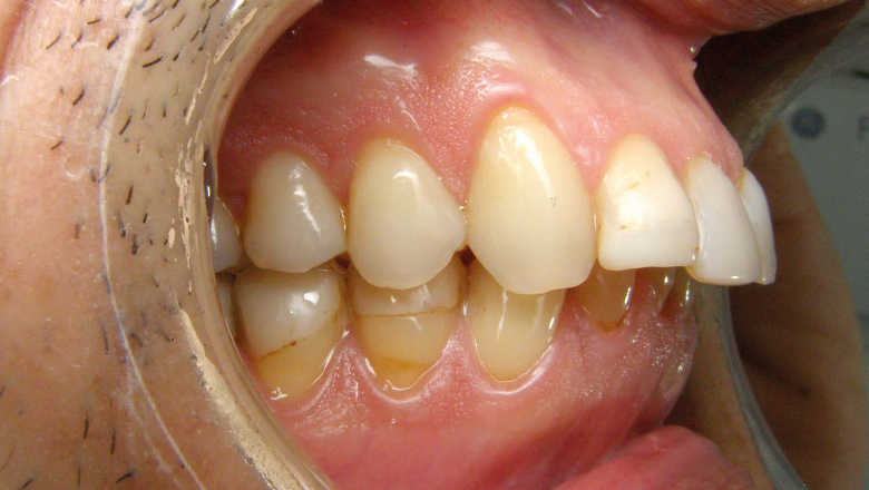 Les aligneurs en orthodontie : une solution à la portée de l'omnipraticien