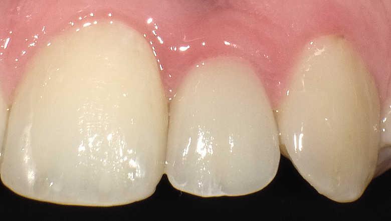 Ouverture de l'espace inter-radiculaire pour la pose d'un implant étroit