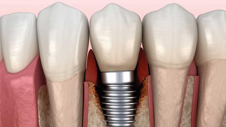 Aspects immunologiques du rejet d'implants dentaire