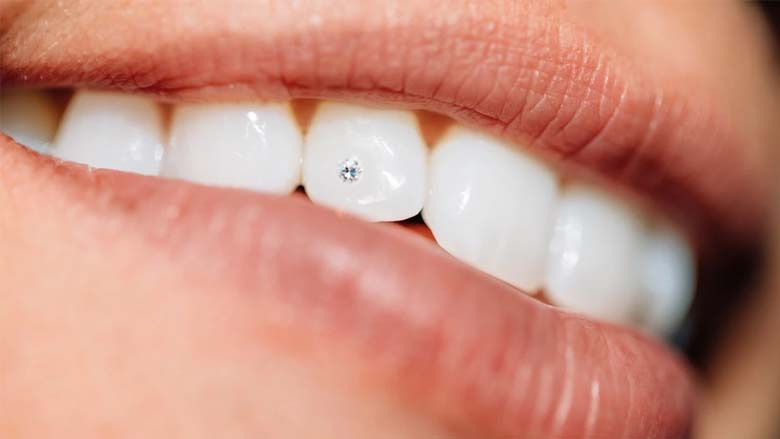 The Cosmo-Dentist Makes Smiles Sparkle With Tooth Jewel