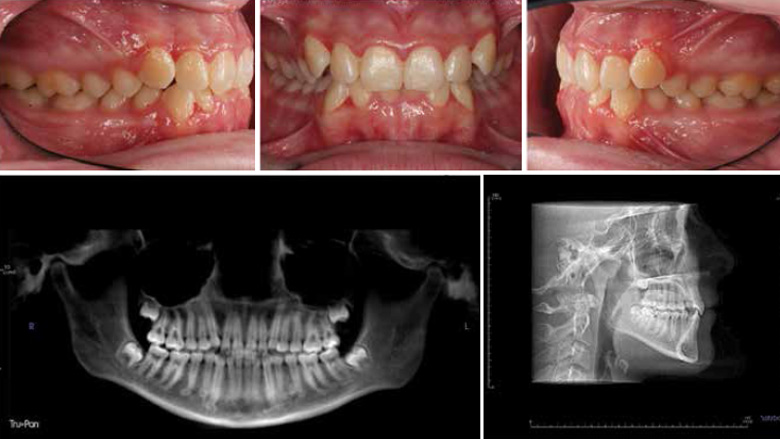 Orthodontic treatment changes and efficiencies during COVID-19 pandemic