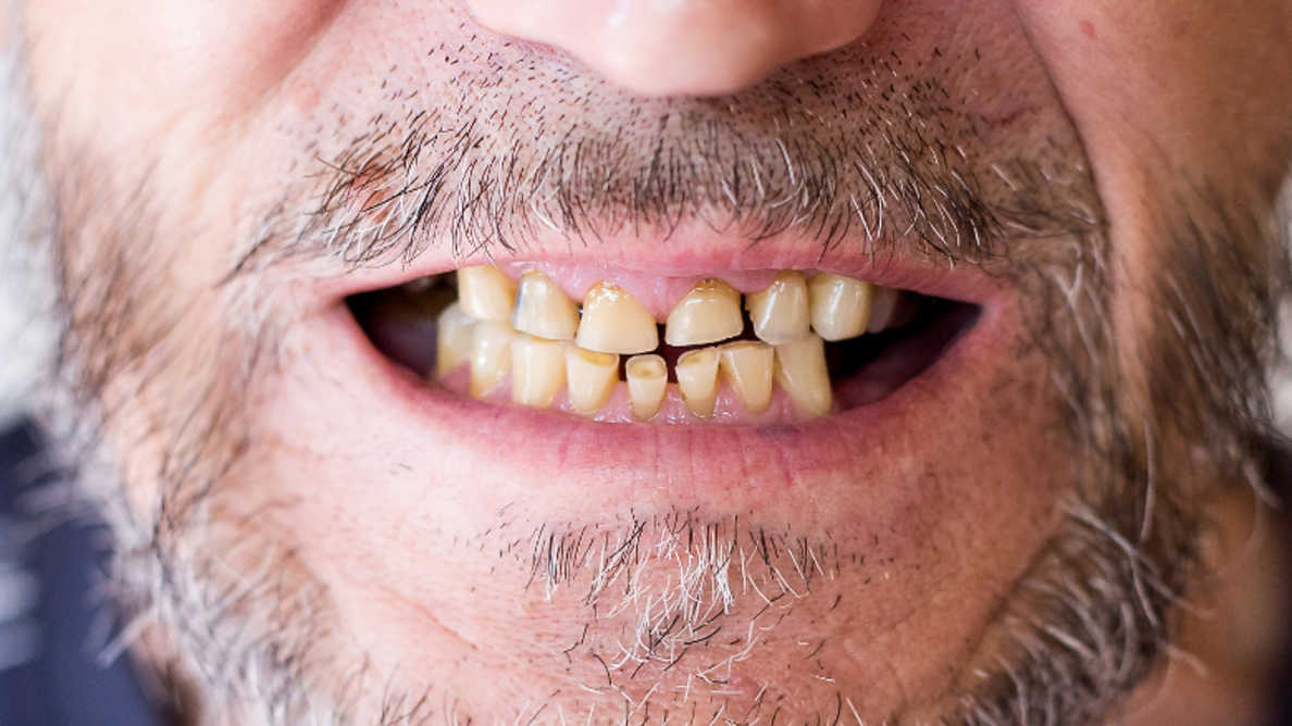 Пандемия ведет к увеличению распространенности стоматологических заболеваний, связанных со стрессом