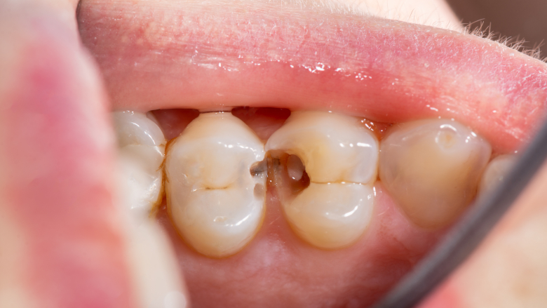 Study offers new insights into periodontal disease and body's protective response